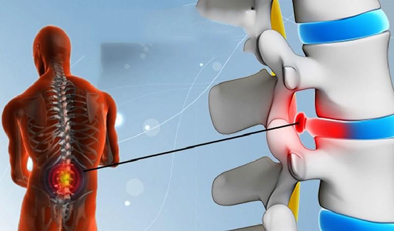 Đau lưng mỏi gối là bệnh gì
