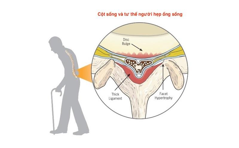 Đau lưng là biểu hiện bệnh gì