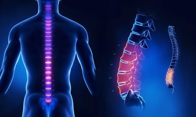 đau từ thắt lưng lan xuống mông do nhiễm trùng hoặc chấn thương cột sống